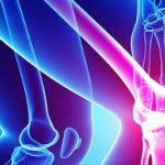 Cannabis Osteoporosis